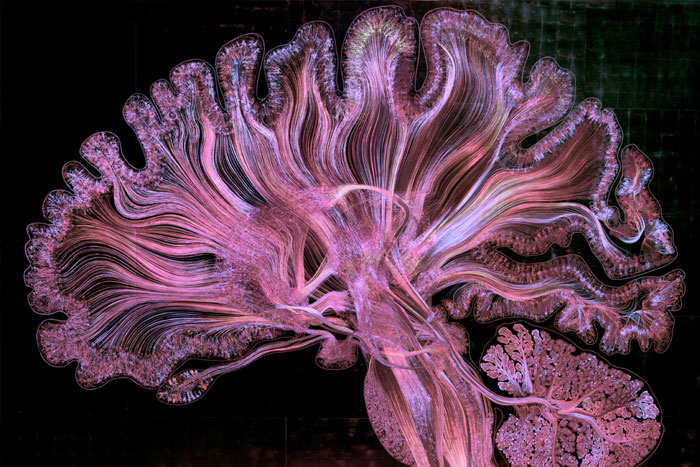 Gregg A Dunn Self Reflected in Violets brain image